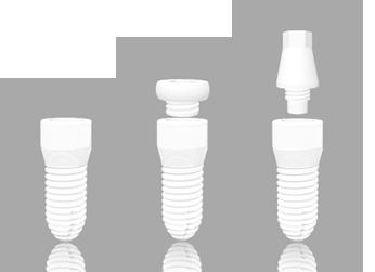 AWI Implantat weiß
