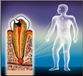 Störfelddiagnostik