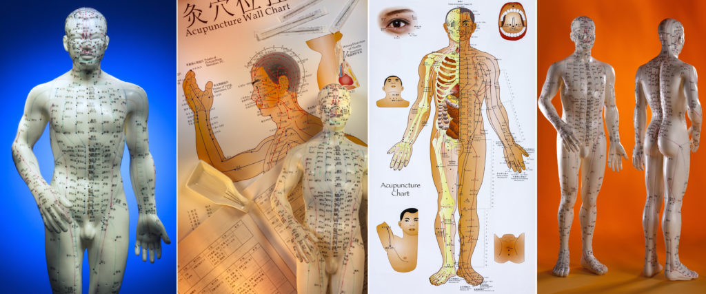 Acupuncture is a system of complementary medicine that involves pricking the skin or tissues with needles, used to alleviate pain and to treat various physical, mental, and emotional conditions. Originating in ancient China, acupuncture is now widely practiced in the West.