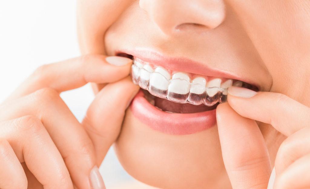 unsichtbare Zahnspnge